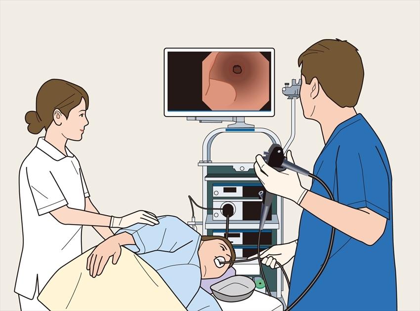 胃内視鏡検査(胃カメラ)検査の流れ